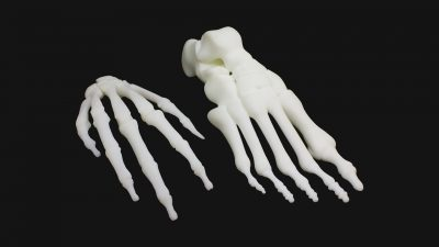 3D列印代工、代印 - 醫療 骨